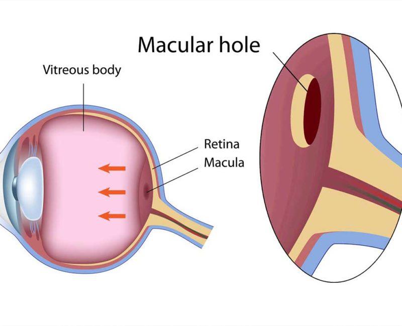 Medivision 17. Macular Hole