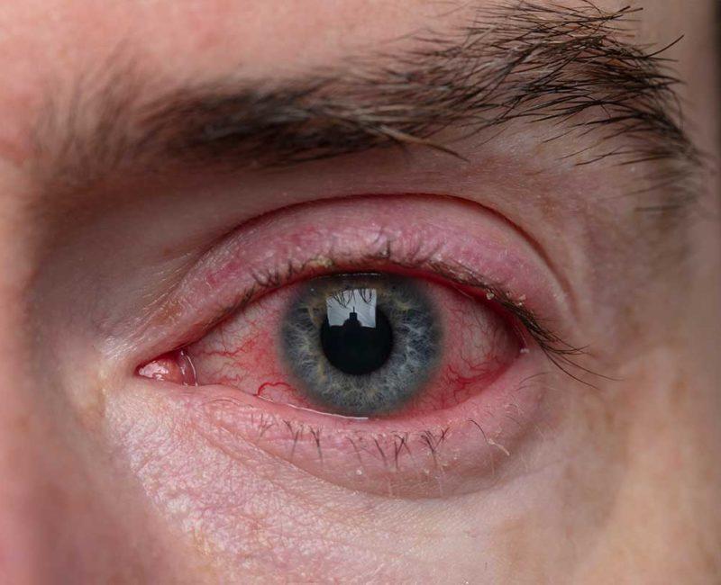 Medivision 3. Blepharitist