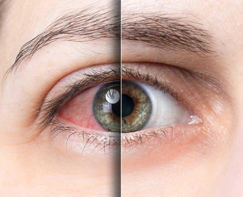 Medivision 8. Dry Eye