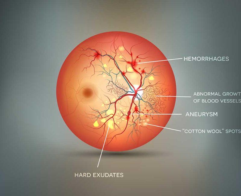 Medivision 9. Diabetic Retinopathy